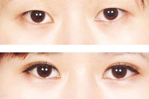 终于在北京做了双眼皮手术