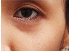 武汉美容医院去黑眼圈手术经历