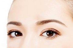 双眼皮整形手术有哪种方法