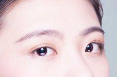 做双眼皮手术疼不疼