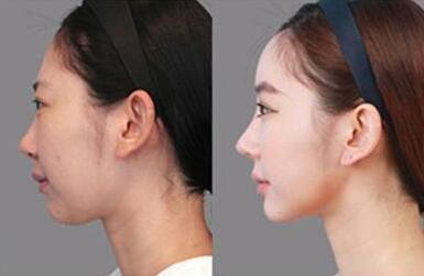 隆鼻后多长时间能洗脸