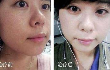 彩光嫩肤的副作用和危害大吗_彩光嫩肤适合人群