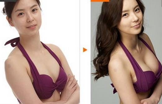 乳房再造术适合人群_乳房再造术方法