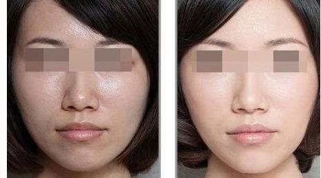 彩光嫩肤的功效和作用有哪些