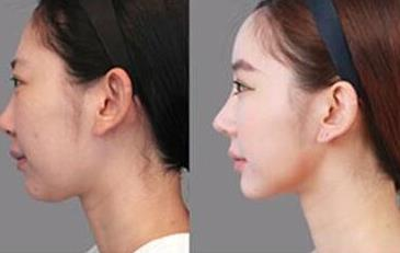 隆鼻术后多久可以洗脸