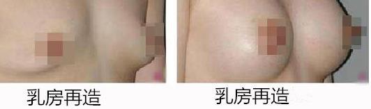 乳房再造手术方式及术后特点