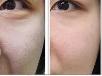 彩光嫩肤的副作用和危害