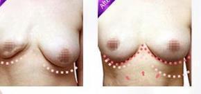 乳房再造手术对比照_乳房再造术安全吗(图)
