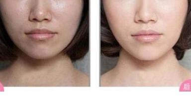 彩光嫩肤手术有没有后遗症呢