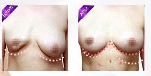 乳房再造手术安全性高吗