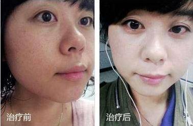 彩光嫩肤副作用有哪些呢