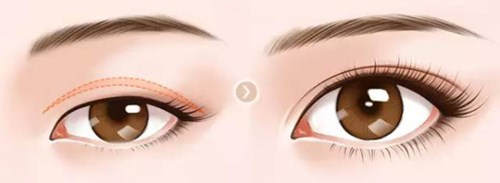 双眼皮术后疤痕增生期是多久