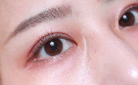 双眼皮埋线能保持多长时间_可以做第二次吗