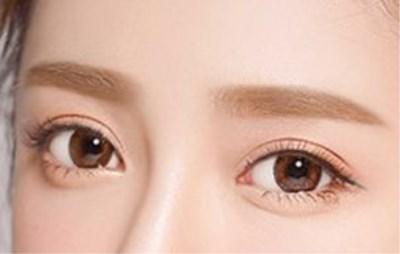 全切进线双眼皮修复最佳时间