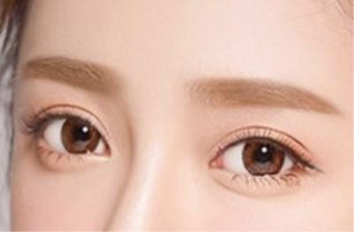 双眼皮术后注意事项有哪些?为什么?