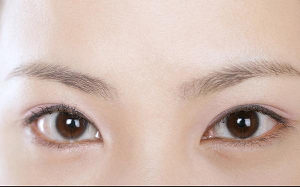 双眼皮手术多久能恢复自