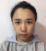 最新割双眼皮手术案例图片