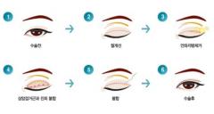 双眼皮类型有几种图片