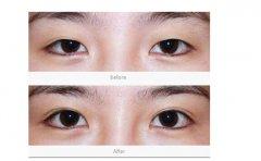 双眼皮手术对比效果图男