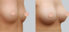 胸下垂松弛手术多少钱