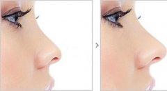 鼻子整形拆线可以去一般