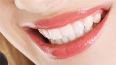 牙齿美白价格大概多少左