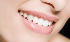 牙齿美白贴面价格和维持