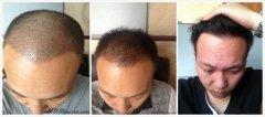 植发后多久开始生长新发