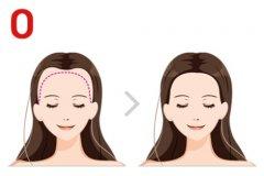 发际线植发一般需要多少