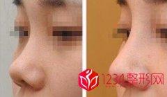 整容鼻子修复必须要满3个月吗