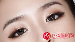 割双眼皮和埋线的区别在哪里详解