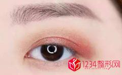 割双眼皮大概多久能恢复正常且自然