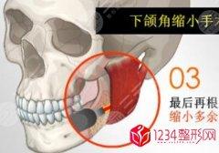 下颌角磨骨手术大概多少