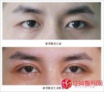 男士双眼皮有几种款式类型哪种好看(图片)