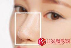 鼻头肥大怎么改善不做手术